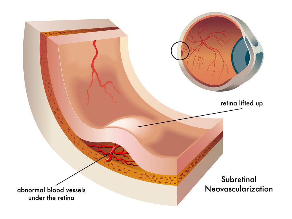 Macular Degeneration | Retina Specialists of Florida Retina Consultants
